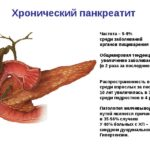 Что это Хронический Панкреатит? Причины и симптомы