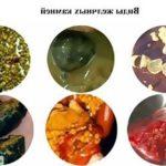 Понимание желчных камней: типы, боль и многое другое