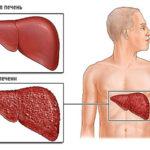 Цирроз и гепатит С