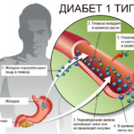 Диабет 1 типа и 2 типа: в чем разница?