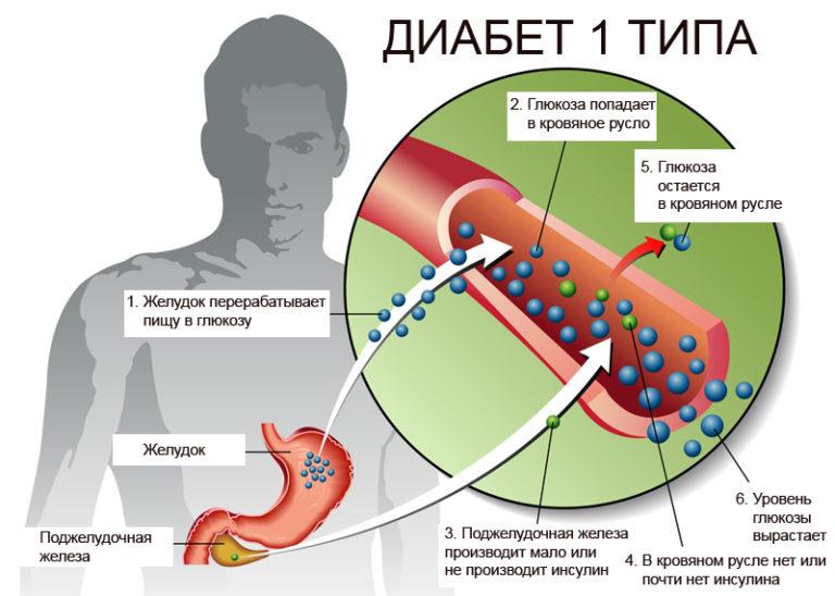 Диабет 1 типа и рак