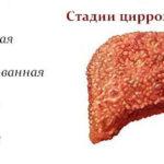 Понимание гепатита С от диагностики к стадии 4 (Терминальная стадия заболевания печени)
