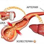 Печень и холестерин: взаимосвязь, влияние, улучшение работы печени.