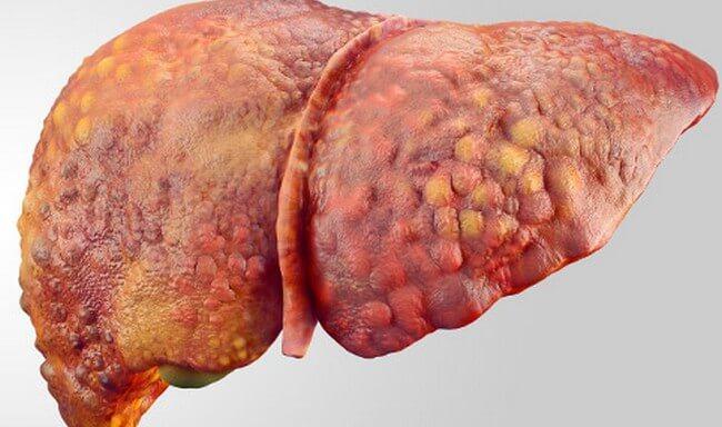 Народные средства лечения гепатоза печени