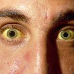 Что вызывает желтуху?