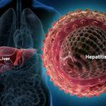 Наглядное пособие по гепатиту